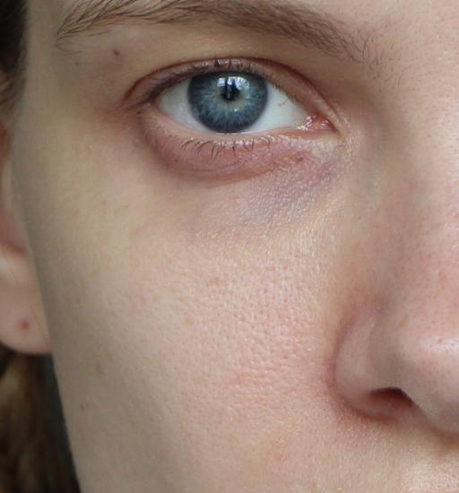 before photo skin